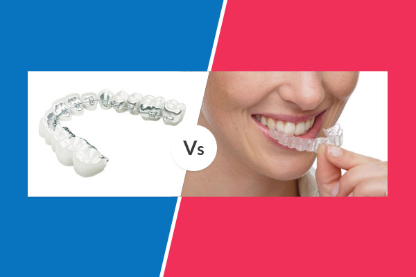 invisalign vs lingual braces